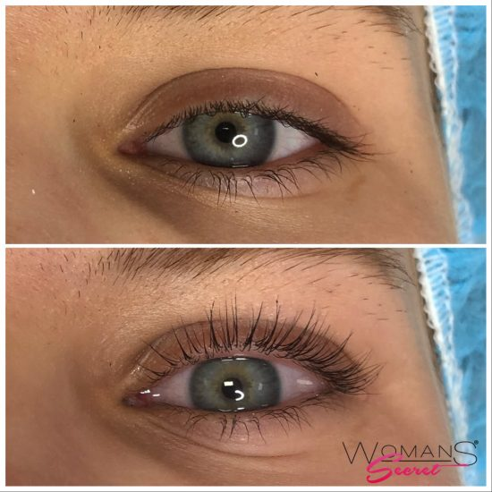 wimpernlifting1